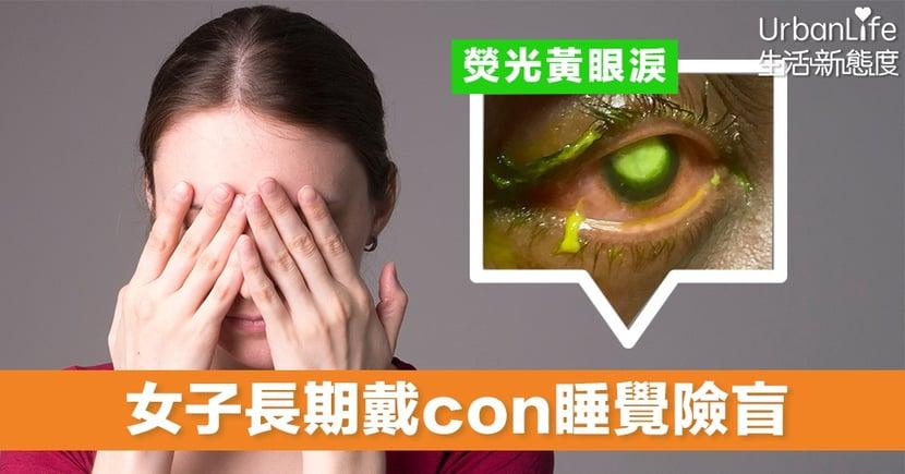 【隱形眼鏡】女子長期戴隱形眼鏡過夜 流出熒光黃液體 險釀成永久失明