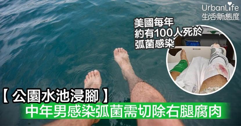 【樂極生悲】中年男公園水池浸腳 感染弧菌需切除右腿腐肉