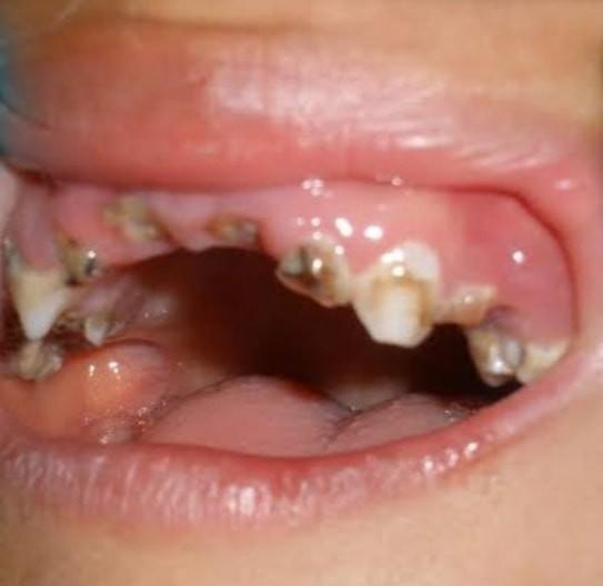 【愛糖如痴】3歲男童愛吃糖 牙齒幾乎蛀光 細菌上眼險失明