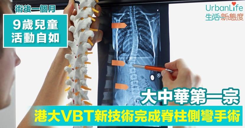 【脊柱側彎】港大VBT新技術完成脊柱側彎手術 9歲童術後一個月活動自如