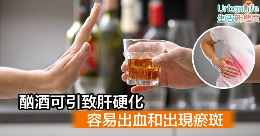 【男性常見疾病】酗酒可引致肝硬化 容易出血和出現瘀斑