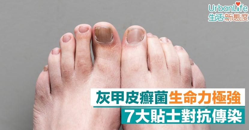 【灰甲】天氣潮濕悶熱易有灰甲 皮癬菌生命力頑強、易傳染