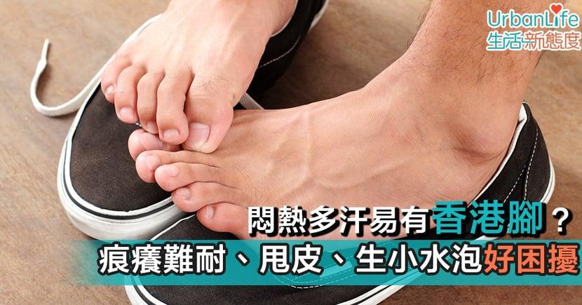 【香港腳】香港腳腳臭痕癢會傳染 跟足指示一周痊癒