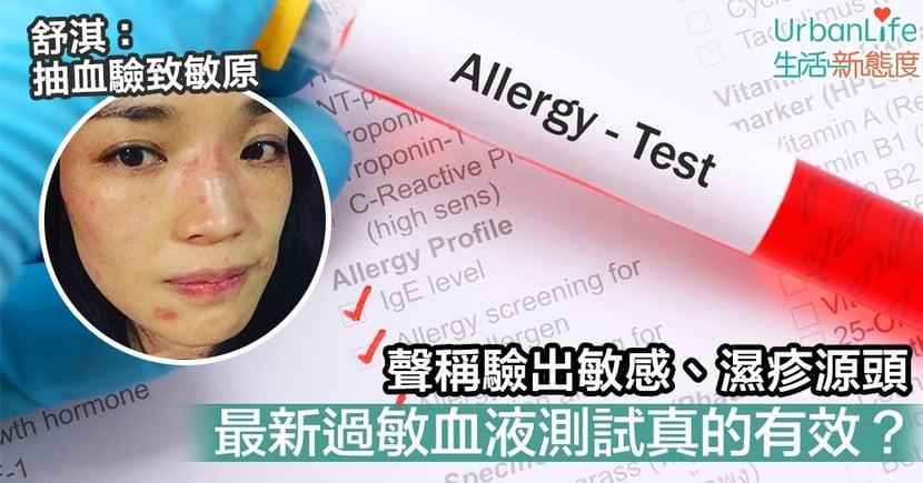 【濕疹|敏感】舒淇皮膚過敏要抽血驗致敏原 過敏測試真的有效?