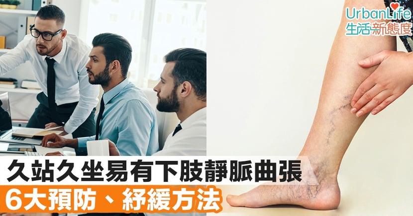 【上班族注意】久站久坐易有下肢靜脈曲張 6大預防、紓緩方法