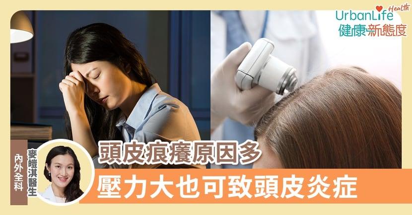 【頭痕成因】頭皮痕癢原因多 醫生:壓力大也可致頭皮炎症