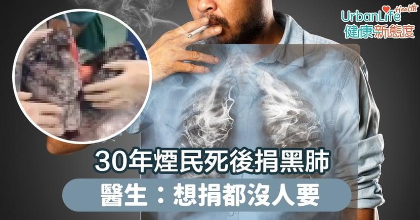 【吸煙禍害】30年煙民死後捐黑肺 醫生:想捐都沒人要