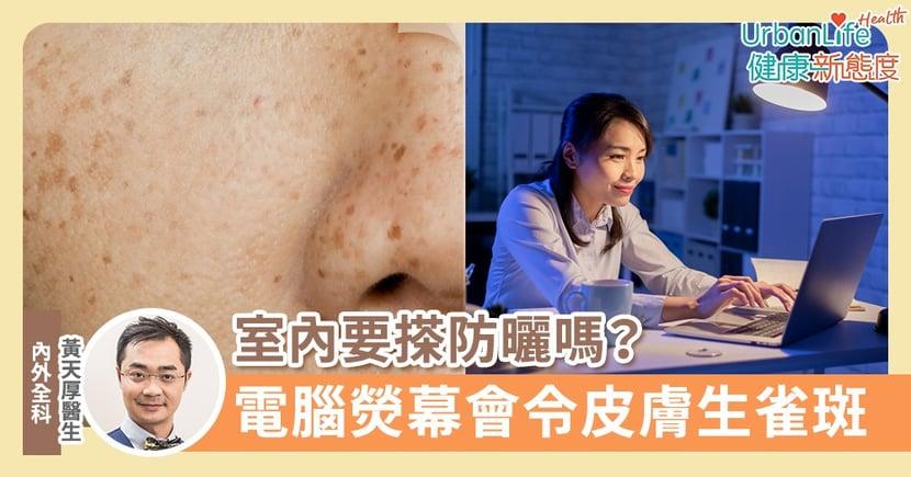 【皮膚保養】室內要搽防曬嗎?醫生:電腦熒幕、大的射燈也會令皮膚生雀斑