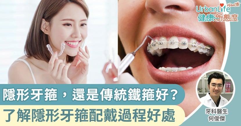 【箍牙】隱形牙箍,還是傳統鐵箍好?牙科醫生分享配戴隱形牙箍過程和5大好處