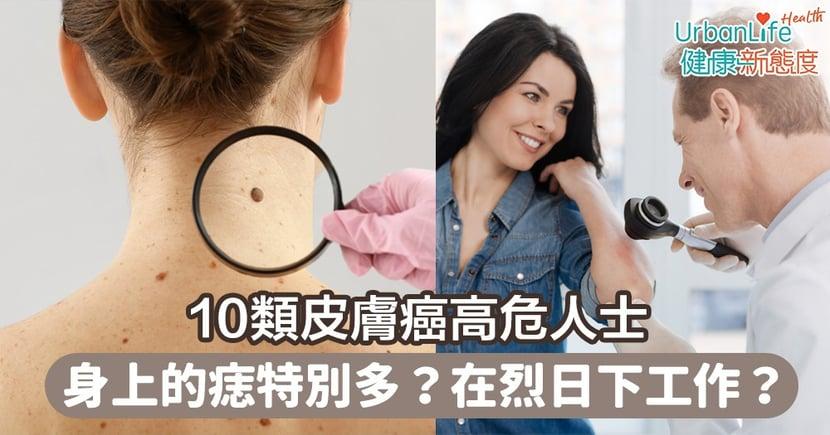 【皮膚癌】身上的痣特別多?長時間在烈日下工作?10類皮膚癌高危人士