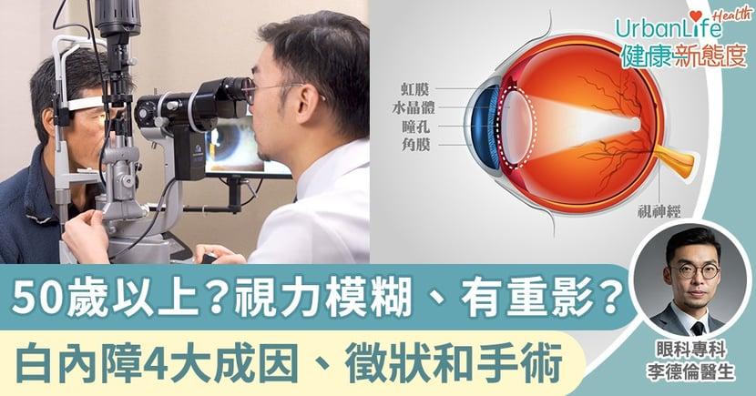 【白內障】50歲以上?視力模糊、有重影?一文了解白內障4大成因、徵狀和手術過程