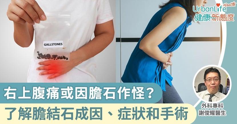 【膽結石成因】右上腹痛或因膽石作怪?外科醫生詳解膽結石成因、症狀和手術