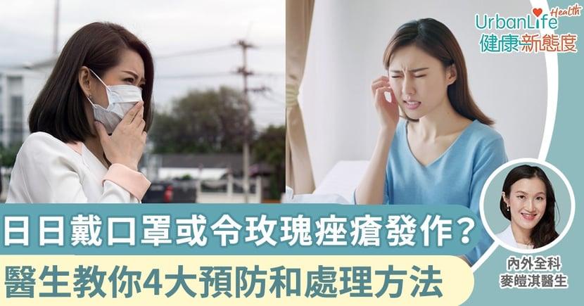 【武漢肺炎|皮膚問題】日日戴口罩或令玫瑰痤瘡發作? 醫生教你4大預防和處理方法