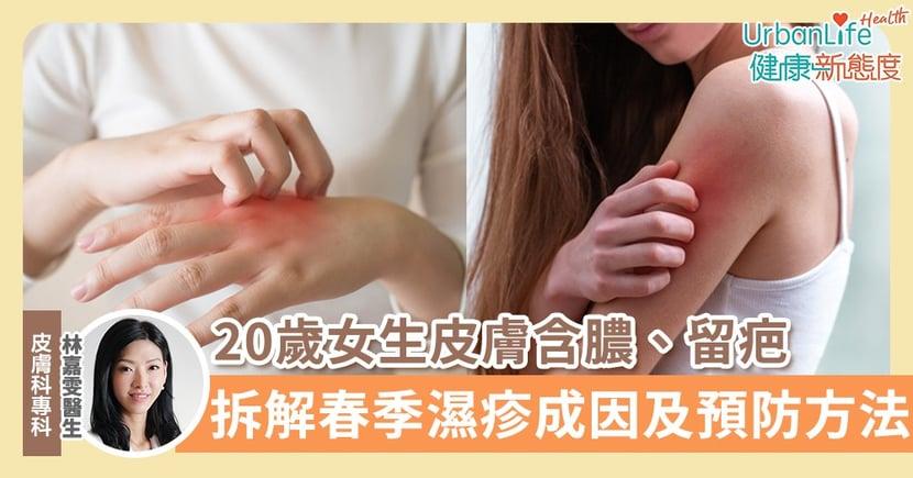 【濕疹原因】20歲女生皮膚含膿、出水、留疤 醫生拆解春季濕疹成因和預防復發方法