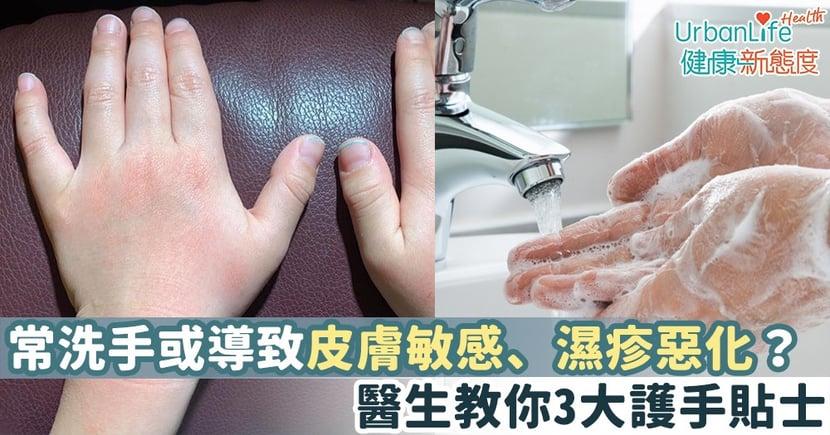 【武漢肺炎預防】常洗手或導致皮膚敏感、濕疹惡化?醫生教你3大護手貼士