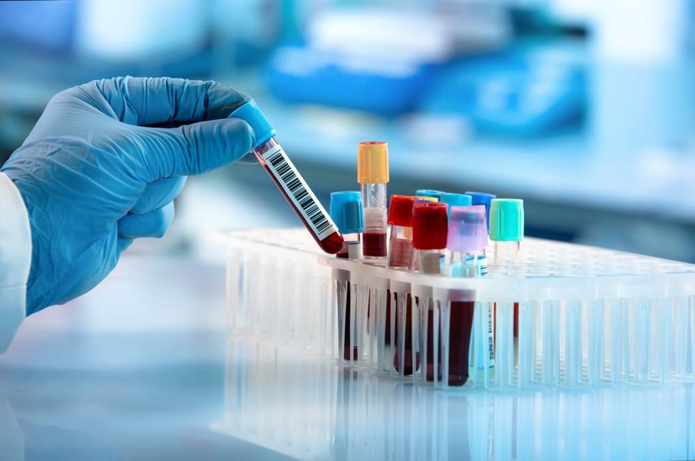有瑞典團隊發現,可用簡單血液測試,量度「p-tau217 蛋白」蛋白濃度,於症狀出現前20年便可測試是否患有阿茲海默症。