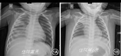 牛牛入院後第6天胸腔明顯縮小、右上葉肺不張。