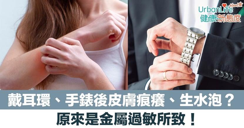 【皮膚敏感】戴耳環、手錶後皮膚痕癢、出紅疹、生水泡?原來是金屬過敏所致!