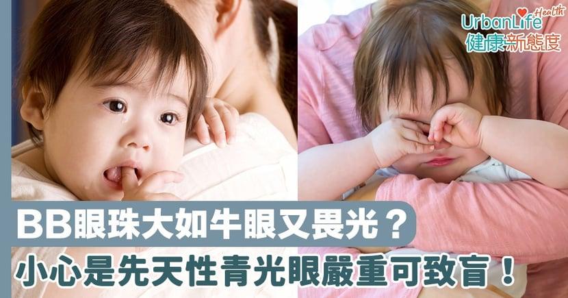 【青光眼症狀】BB眼珠大如牛眼又畏光?小心是先天性青光眼嚴重可致盲!