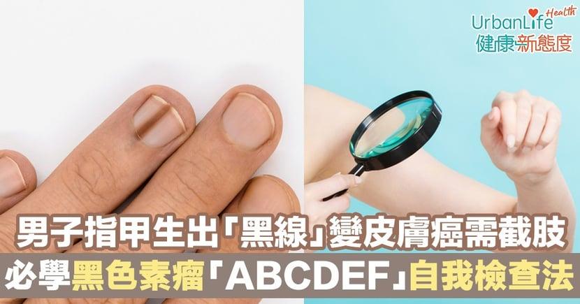 【指甲黑線】男子指甲生出「黑線」變皮膚癌需截肢 必學黑色素瘤「ABCDEF」自我檢查指甲法!