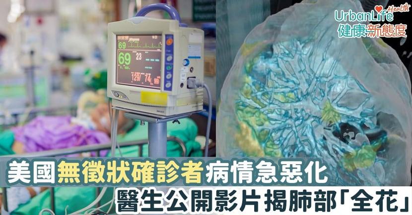 【新型肺炎 美國疫情】美國無徵狀確診者病情急惡化 醫生公開影片揭肺部「全花」