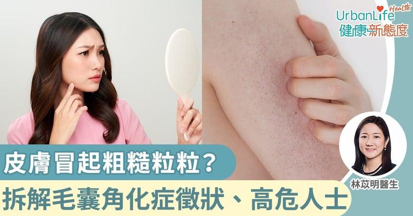 【毛囊角化症】皮膚冒起粗糙粒粒?醫生拆解毛囊角化症徵狀、高危人士