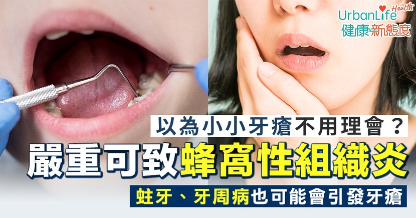 【牙瘡治療】嚴重蛀牙、牙周病會引發牙瘡 嚴重可致蜂窩性組織炎勿小看!