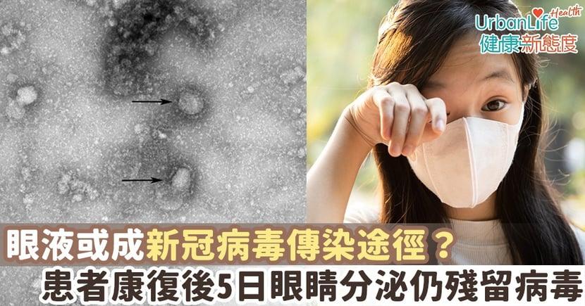 【新型肺炎傳播】眼液或成傳染途徑?報告:患者康復後5日眼睛分泌仍殘留病毒