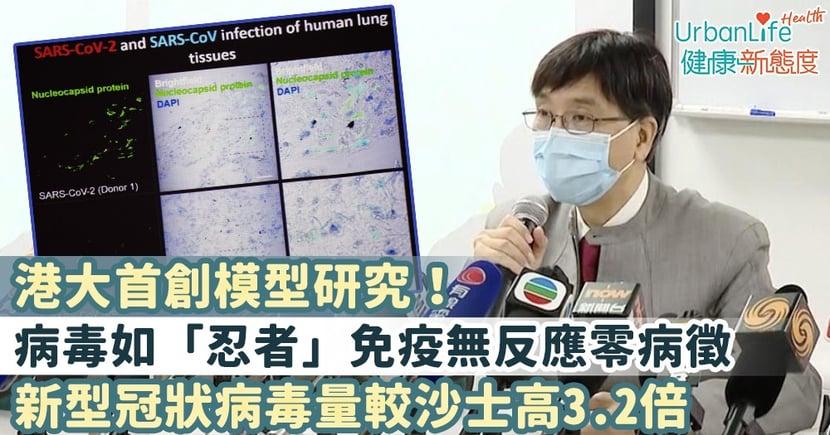 【新型肺炎病徵】港大首創模型研究!病毒如「忍者」免疫無反應零病徵 病毒量卻較沙士高3.2倍