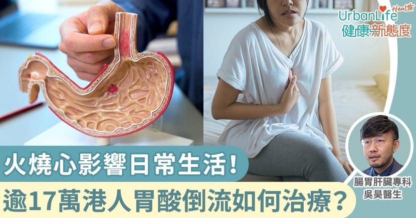 【胃酸倒流症狀】火燒心影響日常生活!逾17萬港人胃酸倒流 醫生講解治療及改善方案