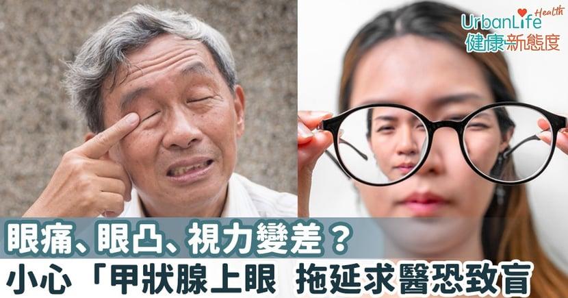 【甲狀腺眼病】眼痛、眼凸、視力變差?小心「甲狀腺上眼」 拖延求醫恐致盲