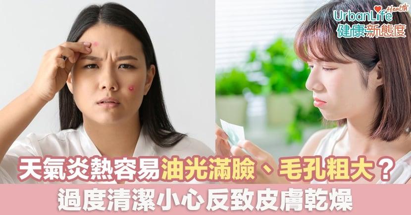 【皮膚控油】天氣炎熱容易油光滿臉、毛孔粗大?過度清潔小心反致皮膚乾燥