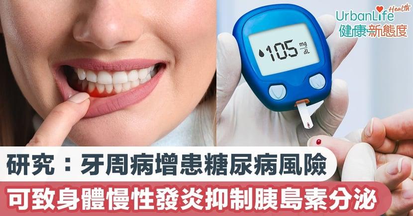 【糖尿病特徵】 研究:牙周病增患糖尿病風險 可致身體慢性發炎抑制胰島素分泌