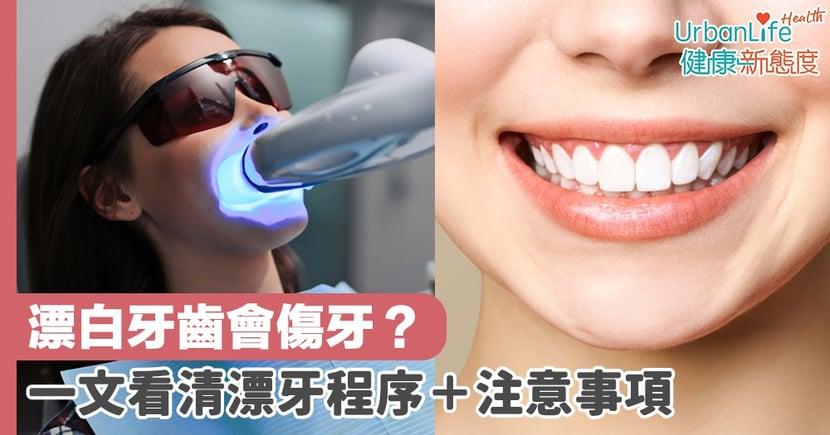 【美白牙齒】漂白牙齒會傷牙?一文看清漂牙程序+注意事項