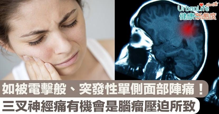 【神經痛治療】如被電擊般、突發性單側面部陣痛!三叉神經痛有機會是腦瘤壓迫所致?