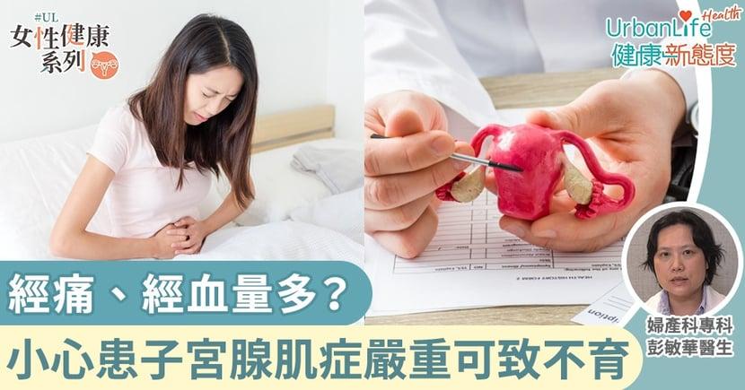 【子宮腺肌症症狀】經痛、經血量多?小心患上子宮腺肌症嚴重可致不育