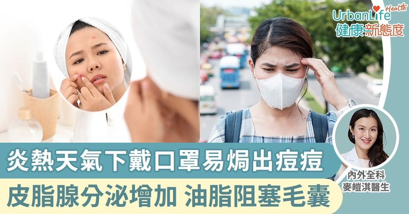 【暗瘡發炎】炎熱天氣下戴口罩導致狂流汗出油、焗出痘痘 醫生教你七招預防暗瘡
