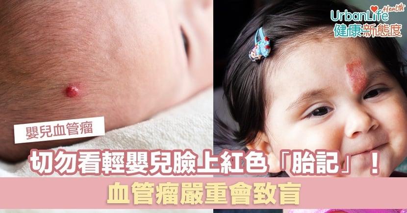 【嬰兒血管瘤】切勿看輕嬰兒臉上紅色「胎記」!血管瘤嚴重會致盲