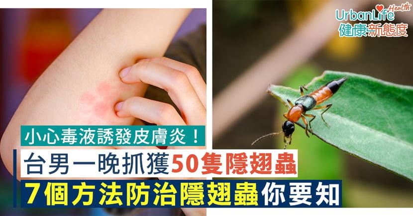【隱翅蟲季節】台男一晚抓獲50隻隱翅蟲憂毒液誘發皮膚炎 學會7招防治隱翅蟲