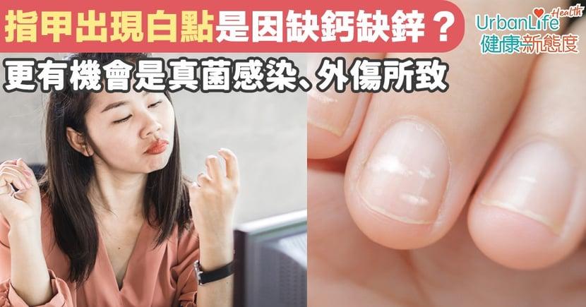 【指甲白點】指甲現白點是因缺鈣缺鋅?更有機會是真菌感染、外傷所致