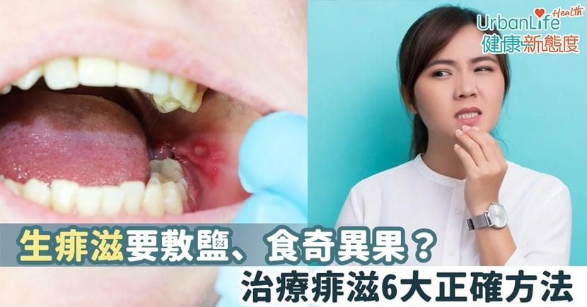 【口腔護理】生痱滋要敷鹽、食奇異果?治療痱滋6大正確方法