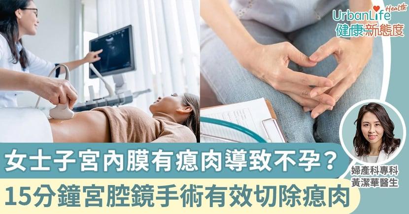【不孕成因】女士子宮內膜有瘜肉導致不孕?15分鐘宮腔鏡手術有效切除瘜肉