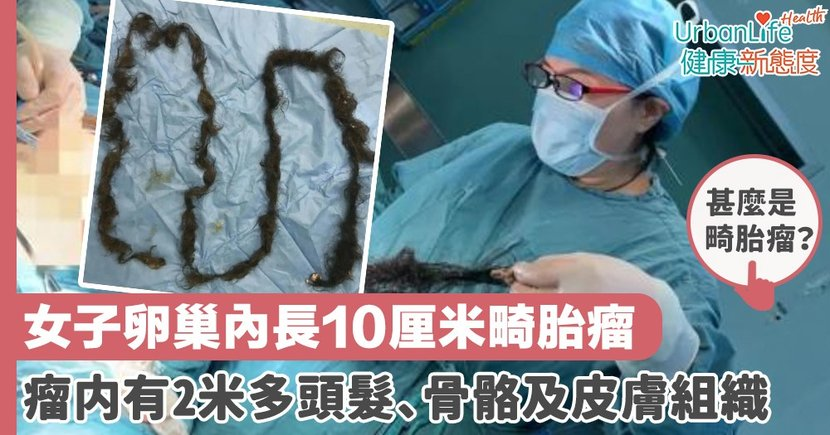 【畸胎瘤手術】女子卵巢內長10厘米畸胎瘤 瘤内有2米多頭髮、骨骼及皮膚