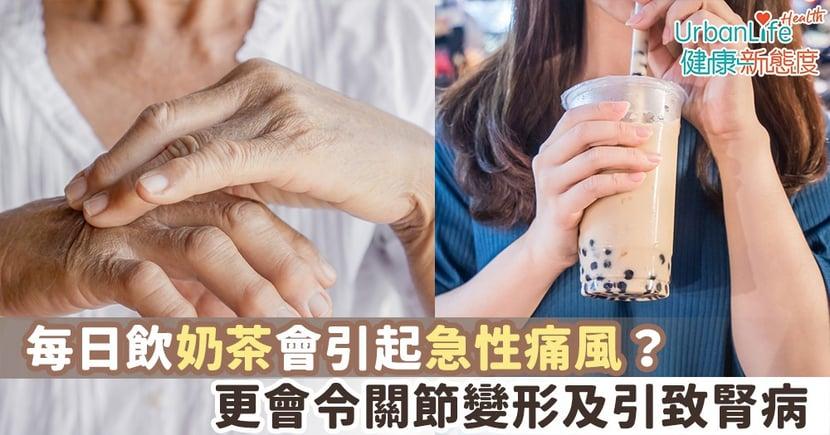 【痛風飲食】每日飲奶茶會引起急性痛風?更會令關節變形及引致腎病