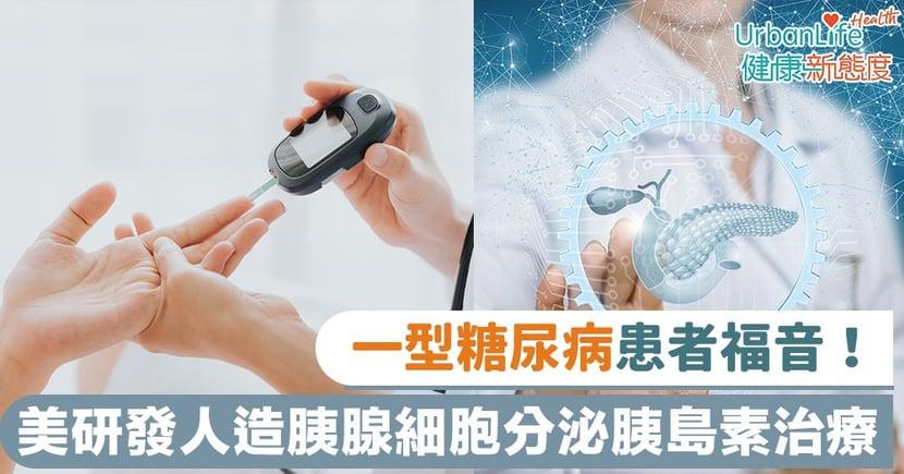 【糖尿病治療】一型糖尿病患者福音!美研發人造胰腺細胞分泌胰島素