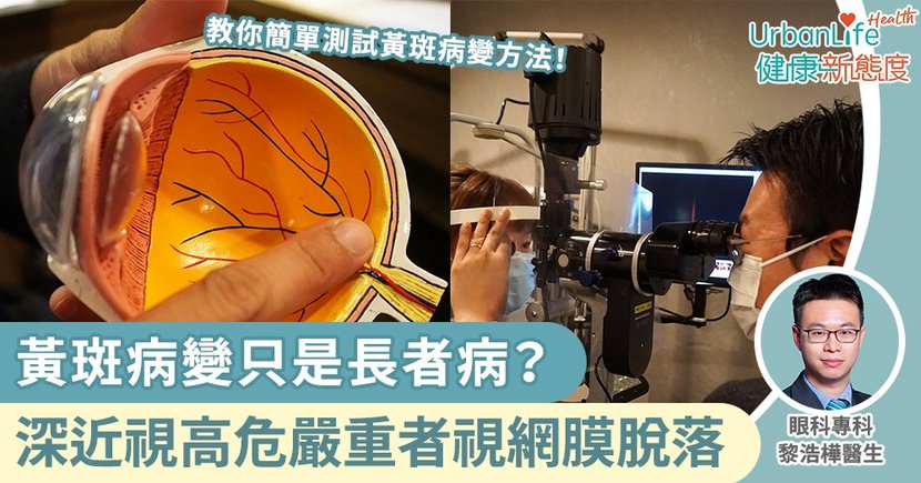 【黃斑病變檢查】黃斑病變只是長者病?深近視人士高危嚴重可致視網膜脫落
