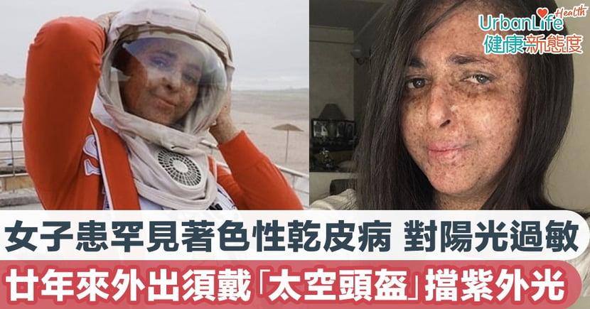 【陽光過敏症狀】女子患罕見著色性乾皮病 對陽光過敏20年來外出須戴「太空頭盔」擋紫外光