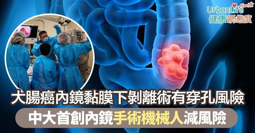 【大腸癌檢查】大腸癌內鏡黏膜下剝離術有穿孔風險 中大首創內鏡手術機械人減風險