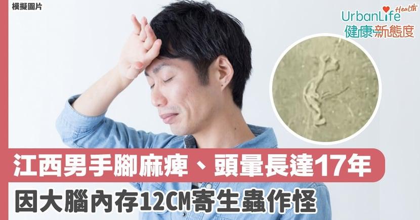 【寄生蟲症狀】江西男手腳麻痺、頭暈長達17年 因大腦內存12CM寄生蟲作怪