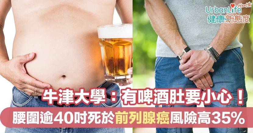 【男士健康】牛津大學:有啤酒肚要小心!腰圍逾40吋死於前列腺癌風險高35%